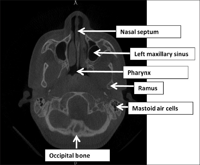 Radiology series: Cone beam computed tomography: The fundamentals of ...