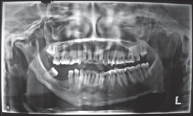 Figure 3: Orthopantomogram X-ray of the jaws showing unilateral mandibular hypoplasia of the right side