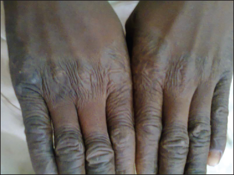 Figure 1: Keratotic plaques on the dorsal skin surface of fingers with extension to the palms of the hands . Bilateral palmar hyperkeratosis of the hands in the 12 year old patient with Papillon-Lefèvre syndrome (PLS)