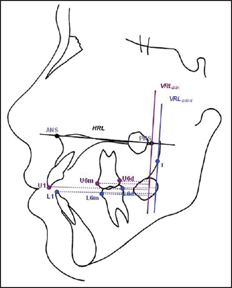 A Study To Evaluate The Changes In 3rd Molar Angulation With