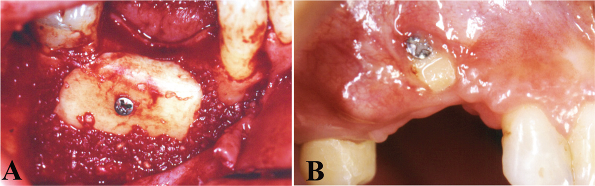 Figure 2 Complications observed in this study. (A) Graft mobility after the healing period. (B) Graft exposure at the first month