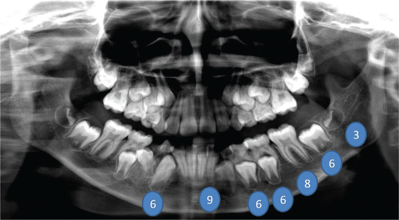 Figure 4 Panoramic radiograph of a 14.5-year male showing various