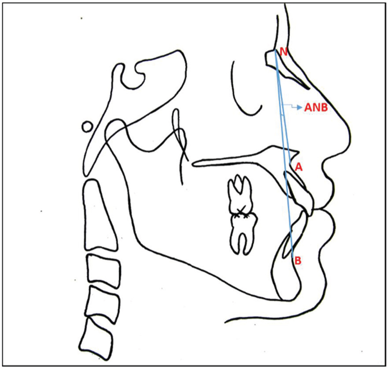 journal of orofacial sciences table of contents Partial Bony Impacted Wisdom Tooth assessment of sagittal skeletal base relationship of maxilla and mandible by horizontal appraisal method a parative and reliability study