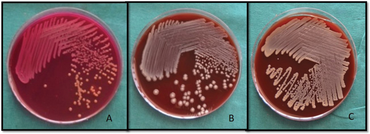 Figure 3 Cultures of most commonly found bacteria in oral cancer on Macconkey agar, Blood agar, Chocolate agar. Staphylococcus species (A,B) and Klebsiella species (C).